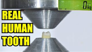 How Strong are Teeth? Hydraulic Press Test!